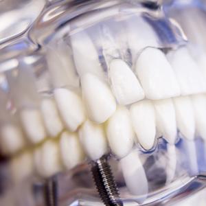 https://dentalopolis.com/wp-content/uploads/2015/11/implant-dentistry.jpg