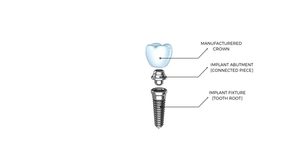 Dentalopolis Dental Implant Anatomy Dentalopolis