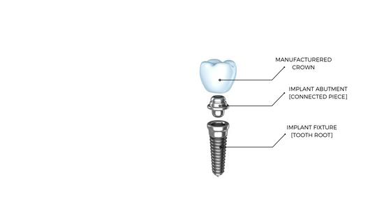 Dentalopolis Dental Implant Anatomy Dentalopolis