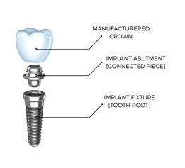 Dental Implant Anatomy Dentalopolis