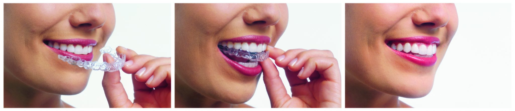 https://dentalopolis.com/wp-content/uploads/2017/03/fitting-invisalign.jpg
