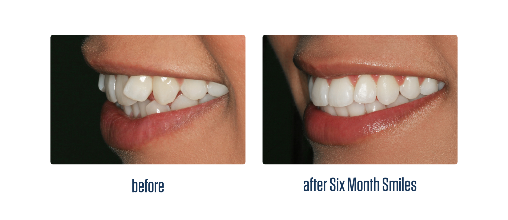 Six Month Smiles Dentalopolis