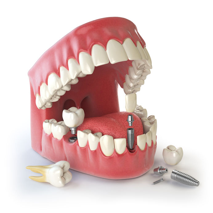 https://dentalopolis.com/wp-content/uploads/2017/05/dental-implant-faq.jpg