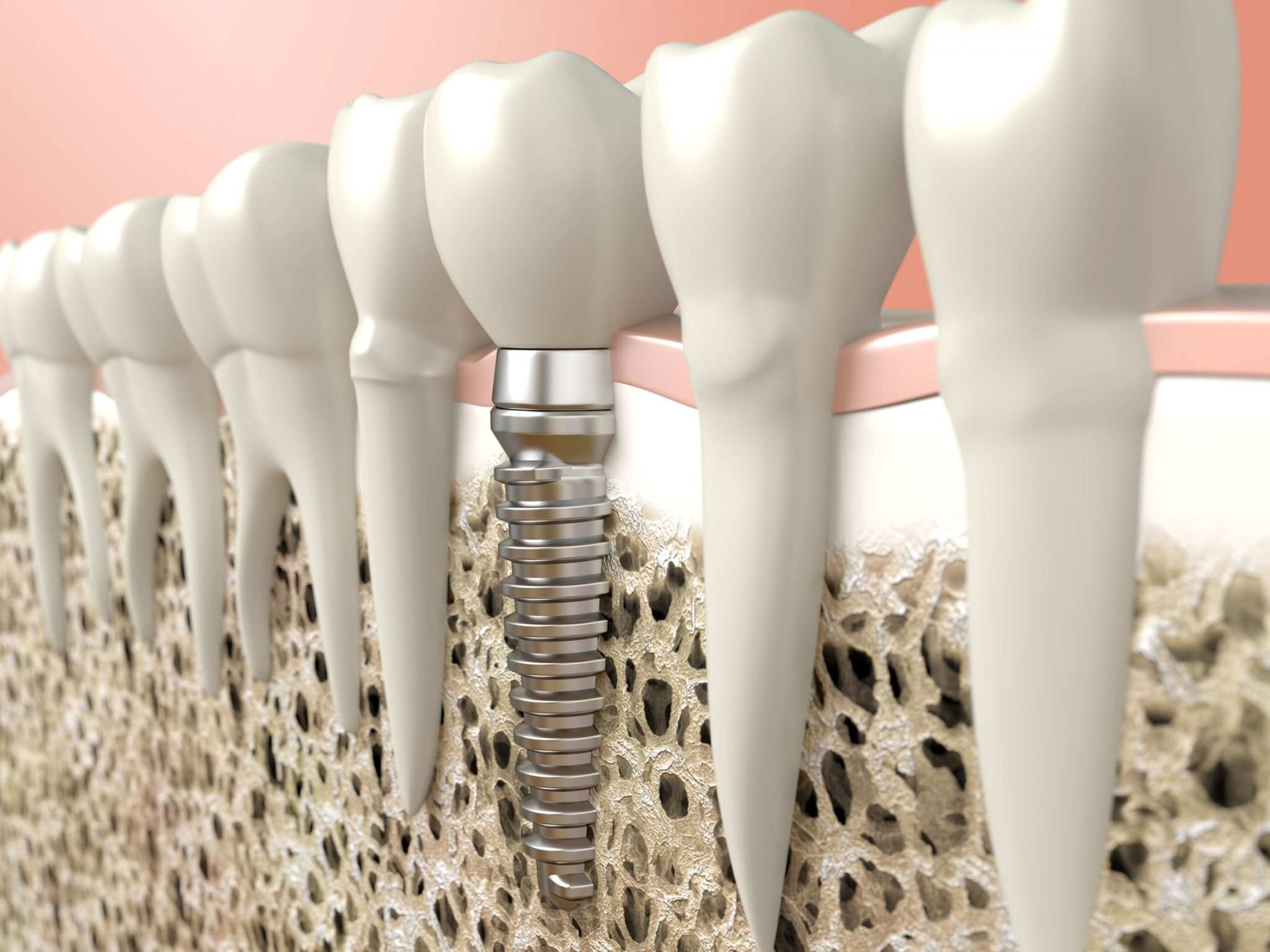 https://dentalopolis.com/wp-content/uploads/2017/05/dental-implant-rendering.jpg