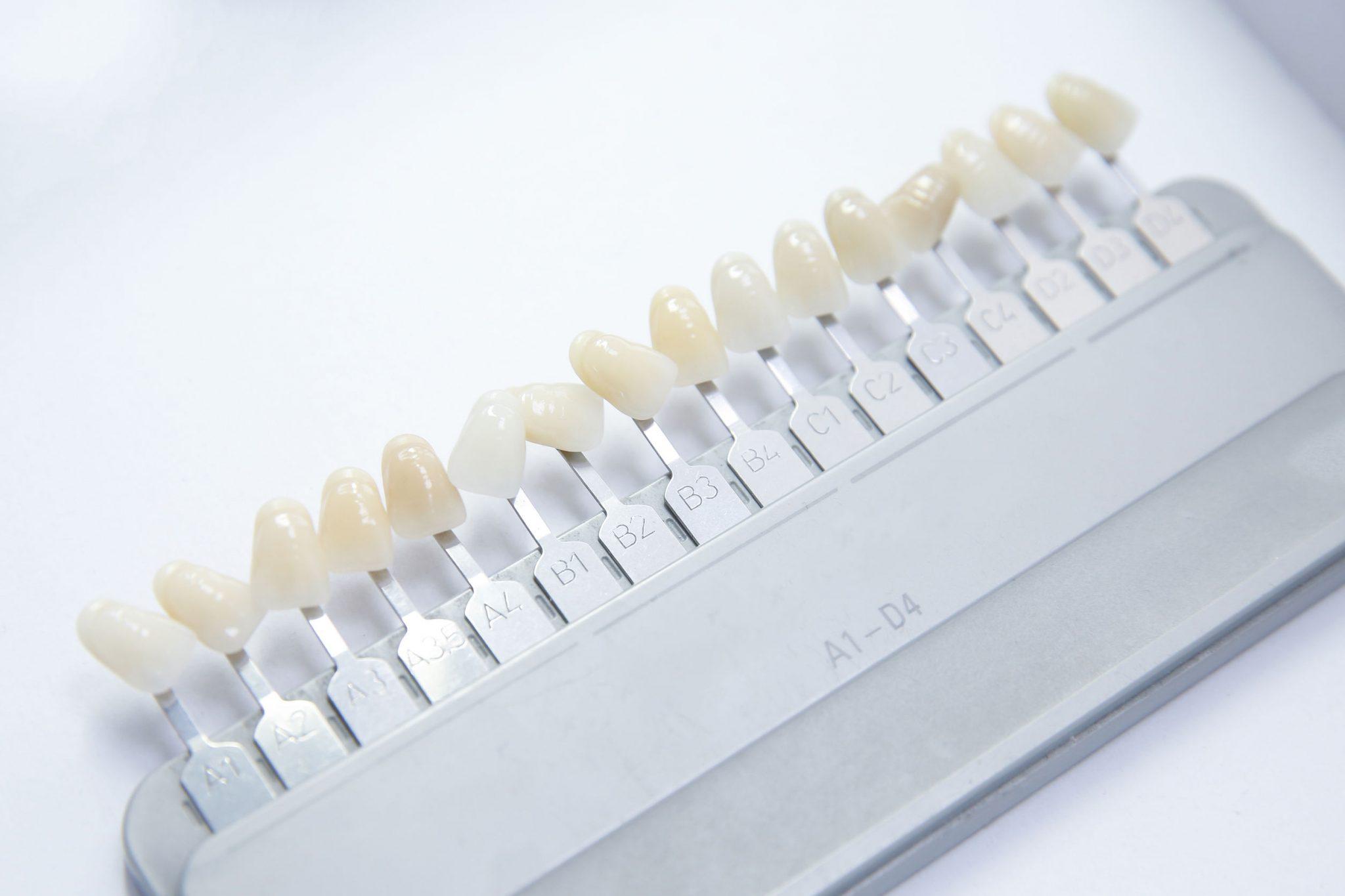 Dental Implant Samples Dentalopolis