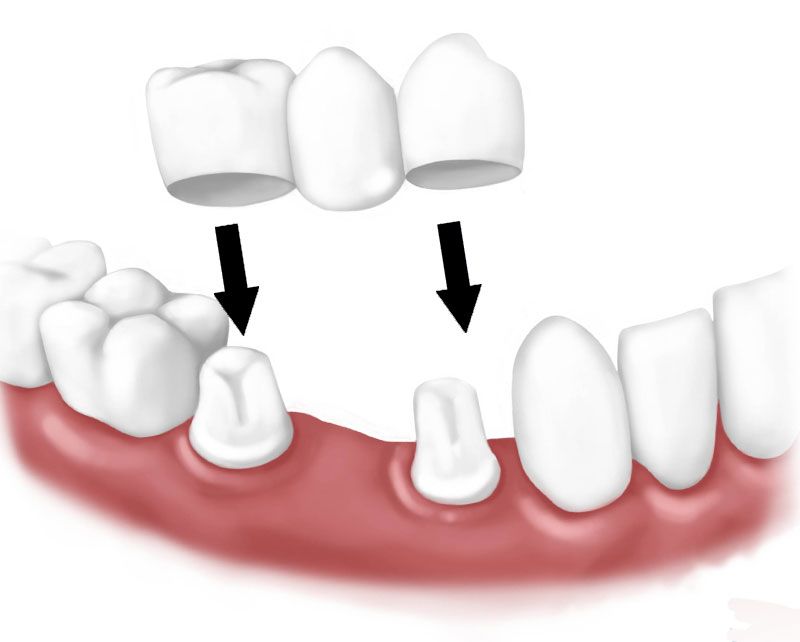 https://dentalopolis.com/wp-content/uploads/2018/01/Dental-Bridge-Teeth.jpg