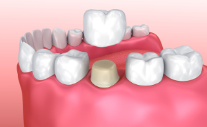 https://dentalopolis.com/wp-content/uploads/2018/01/dental-crown.jpg
