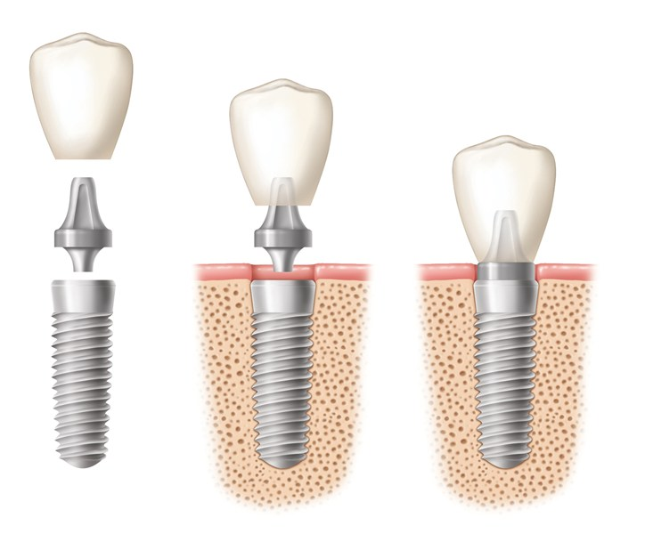 https://dentalopolis.com/wp-content/uploads/2018/02/Dental-Implant-2.jpg