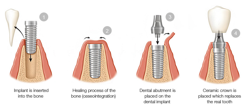 https://dentalopolis.com/wp-content/uploads/2018/02/Dental-Implant-Procedure-Steps.jpg