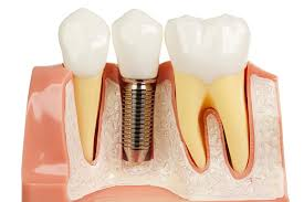 https://dentalopolis.com/wp-content/uploads/2018/02/Dental-Implant.jpeg