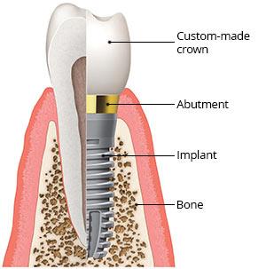 Dental Implant 3 Dentalopolis