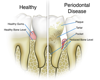 https://dentalopolis.com/wp-content/uploads/2018/02/Gum-Disease.jpg