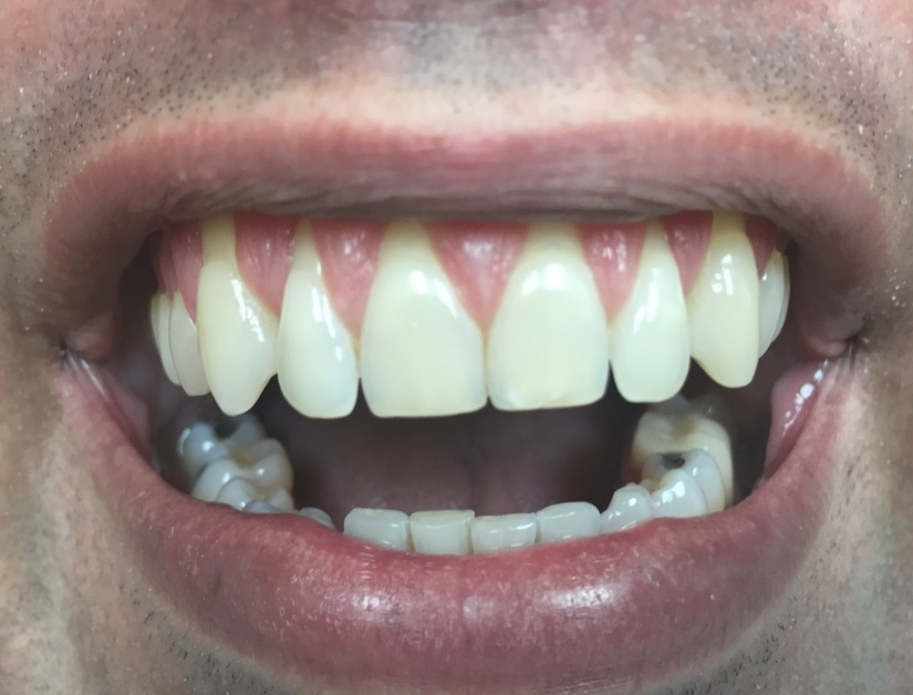 https://dentalopolis.com/wp-content/uploads/2018/02/Gum-Recession-Before.jpg