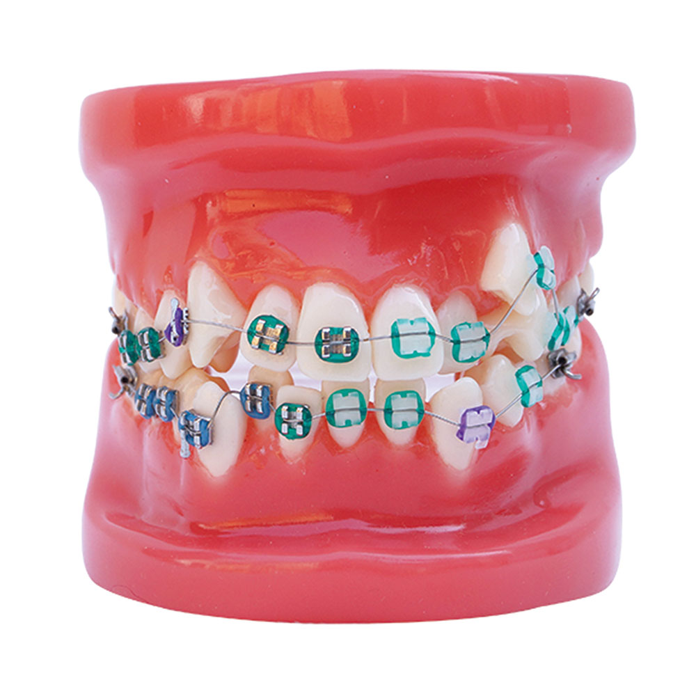 https://dentalopolis.com/wp-content/uploads/2018/02/Orthodontics-1.jpg