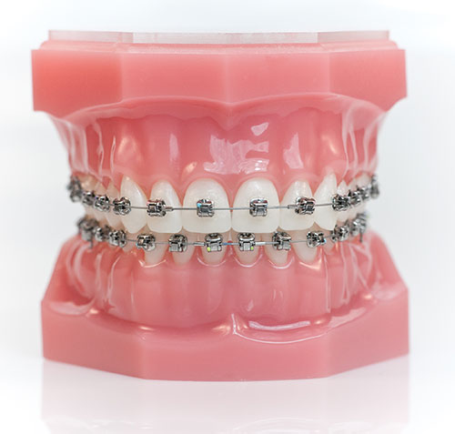 https://dentalopolis.com/wp-content/uploads/2018/02/Orthodontics-2.jpg