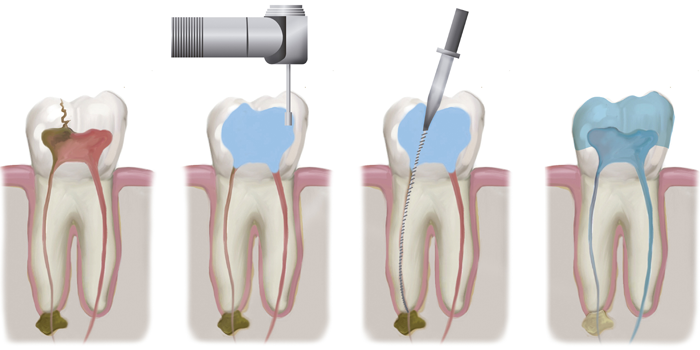 https://dentalopolis.com/wp-content/uploads/2018/02/Root-canals.png