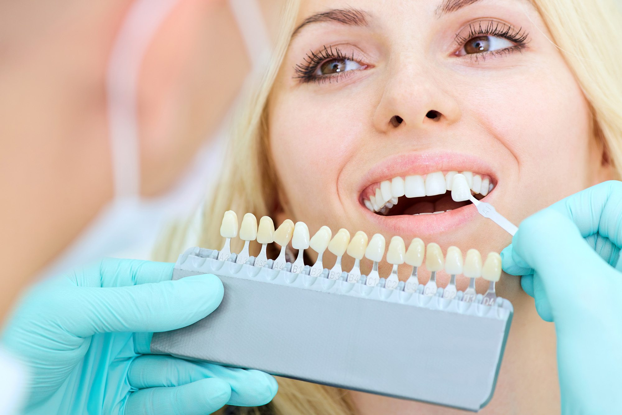 https://dentalopolis.com/wp-content/uploads/2018/02/Teeth-Whitening.jpg