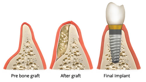 https://dentalopolis.com/wp-content/uploads/2018/02/dental-bone-graft.jpg