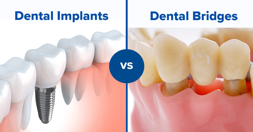 https://dentalopolis.com/wp-content/uploads/2018/02/dental-bridges-vs-dental-implants.jpg