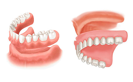 Dentures Learn About Cost Effective Replacement Of