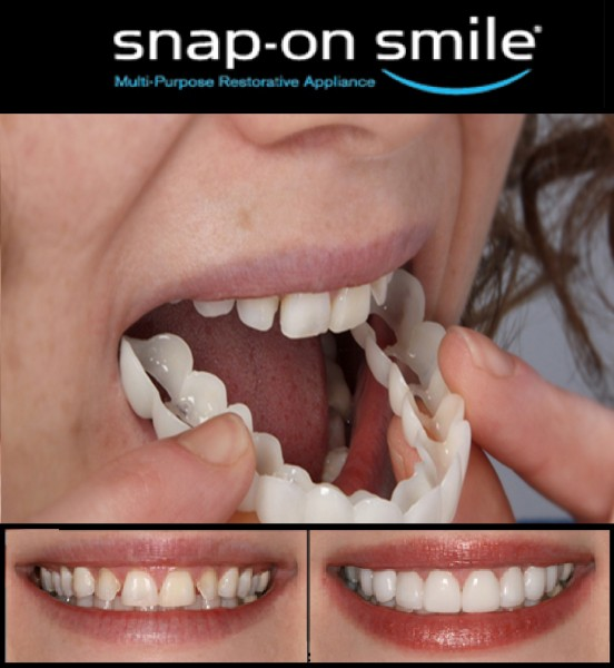 https://dentalopolis.com/wp-content/uploads/2018/02/snap-on-smiles.jpg