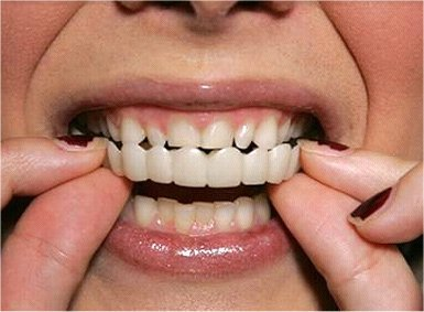 https://dentalopolis.com/wp-content/uploads/2018/02/snap-on-teeth-2.jpg