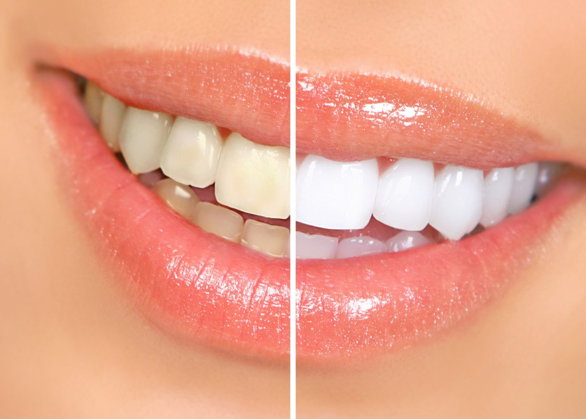 https://dentalopolis.com/wp-content/uploads/2018/02/teethwhitening1-1200x858.jpg