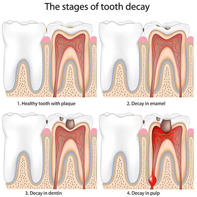 https://dentalopolis.com/wp-content/uploads/2018/02/tooth-decay.jpg