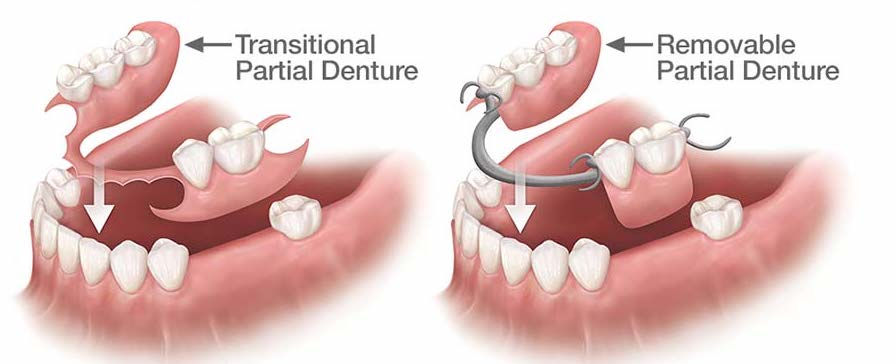 https://dentalopolis.com/wp-content/uploads/2018/02/types-of-partial-dentures.jpg